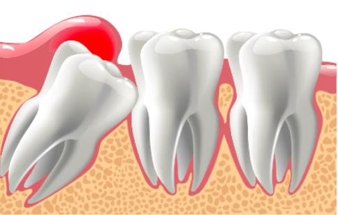 zub-mudrosti-bolit-desna